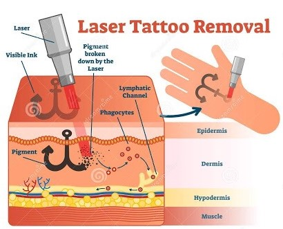 How does laser tattoo removal work?